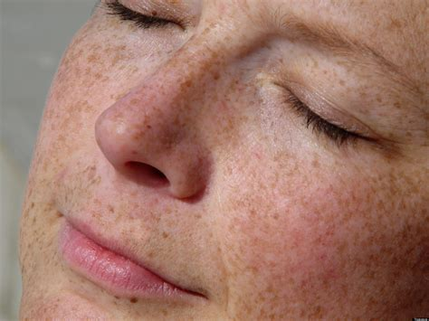 Anti-Aging Skin Care Advice: Why Your Skin Looks Old