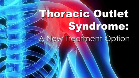 Thoracic Spine: New Treatment Option for Thoracic Outlet