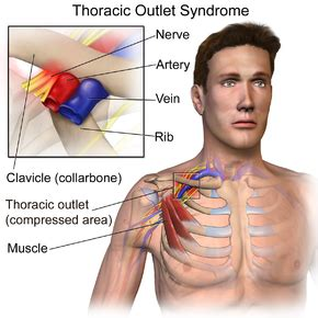 Thoracic outlet syndrome - Wikipedia