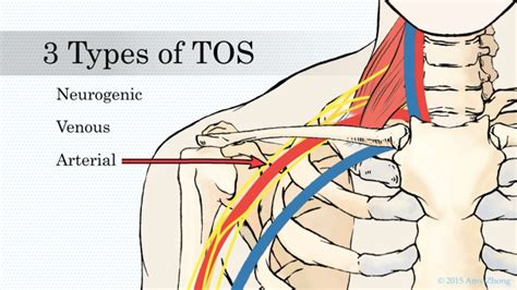 Nerve Block Treatment for Thoracic Outlet Syndrome (TOS