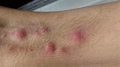 CPD: Lesions plan – managing the skin condition