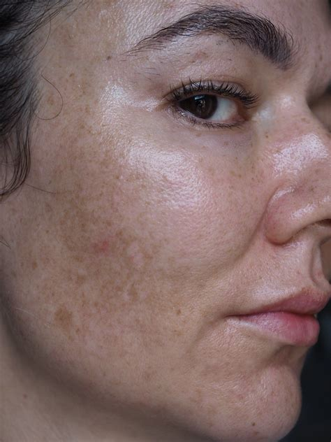 Pin on Brown spots